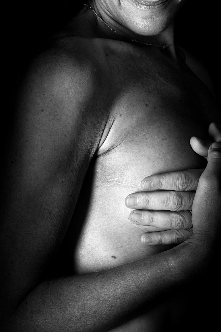 Cicatrice en noir et blanc : cancer du sein